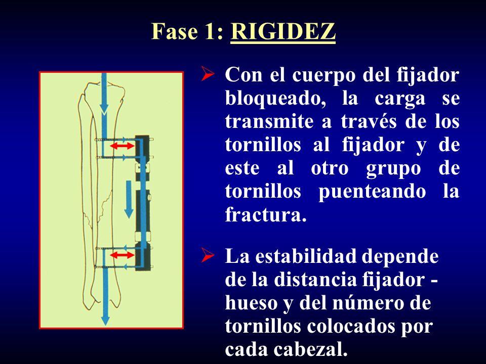 Fase 1: RIGIDEZ