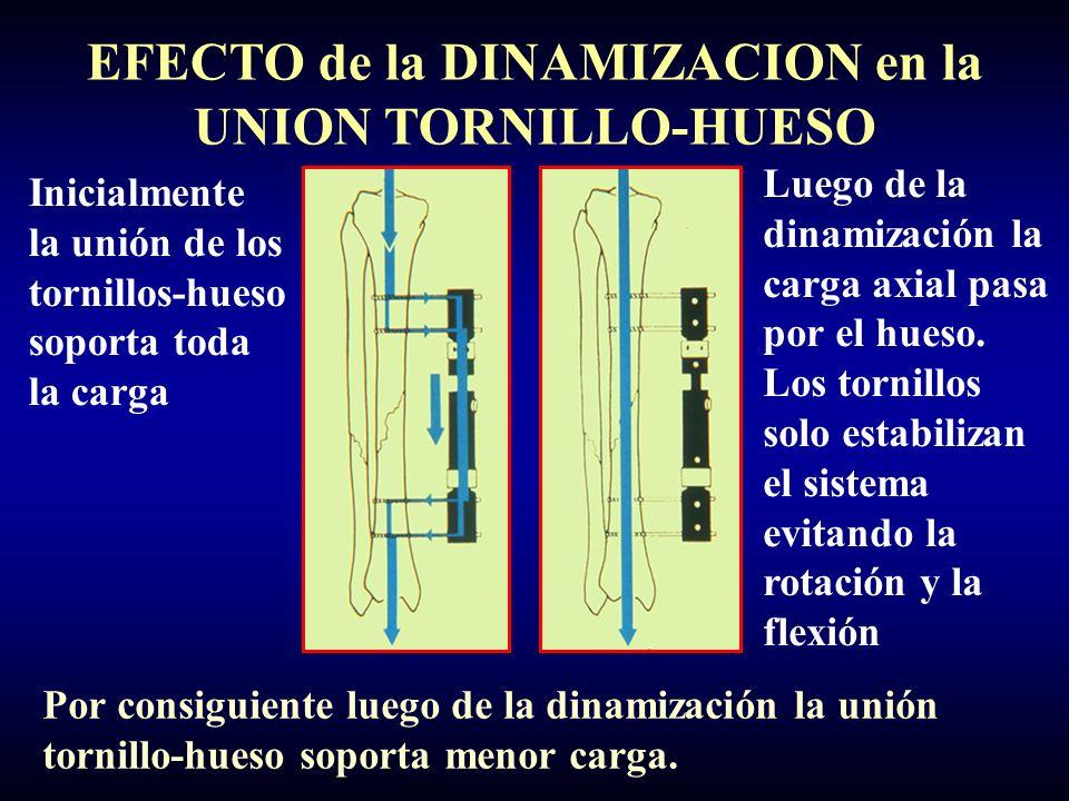 EFECTO de la DINAMIZACION en la UNION TORNILLO-HUESO