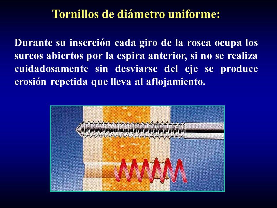 Tornillos de diámetro uniforme: