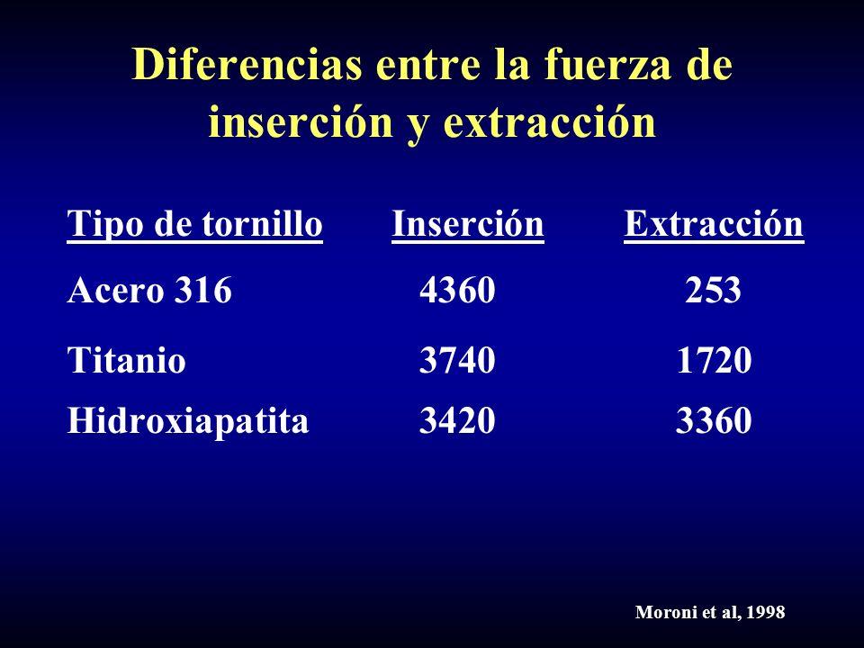 Diferencias entre la fuerza de inserción y extracción