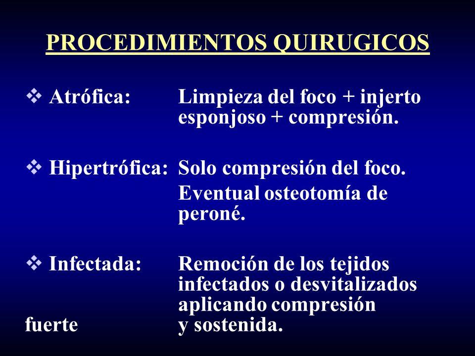 PROCEDIMIENTOS QUIRUGICOS