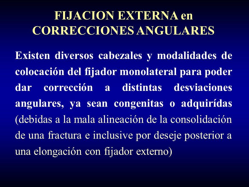 FIJACION EXTERNA en CORRECCIONES ANGULARES