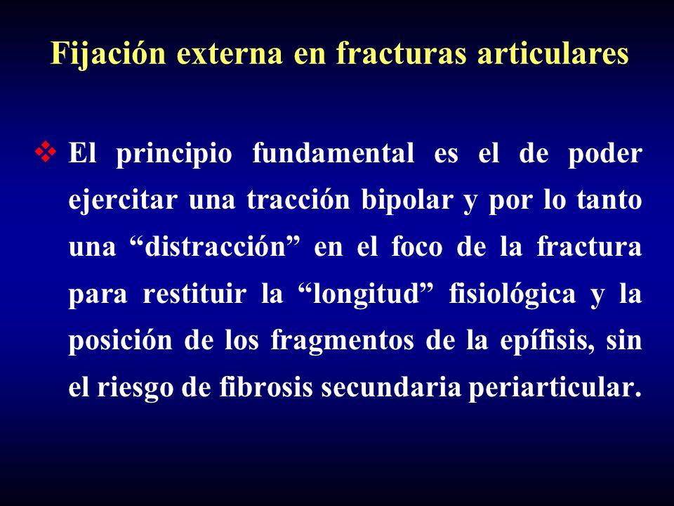 Fijación externa en fracturas articulares