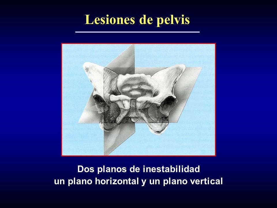 Dos planos de inestabilidad un plano horizontal y un plano vertical