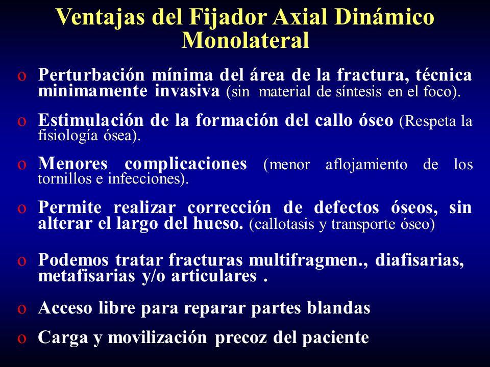 Ventajas del Fijador Axial Dinámico Monolateral