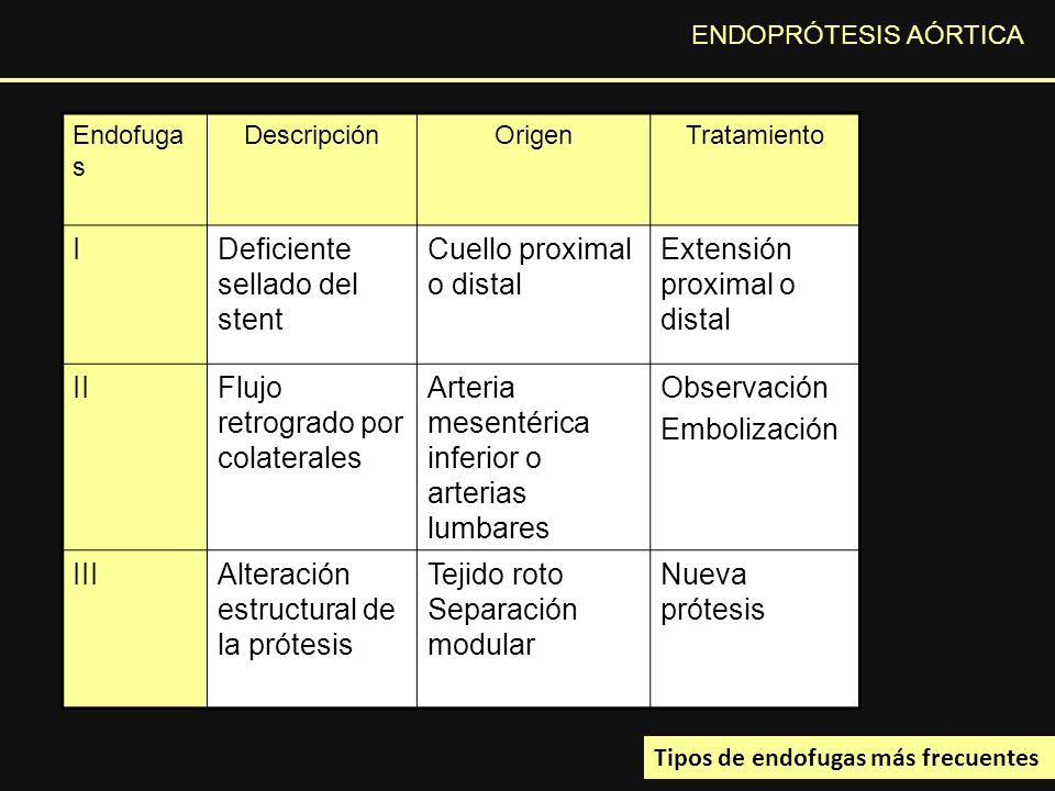 Deficiente sellado del stent Cuello proximal o distal