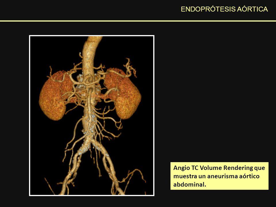ENDOPRÓTESIS AÓRTICA Angio TC Volume Rendering que muestra un aneurisma aórtico abdominal.