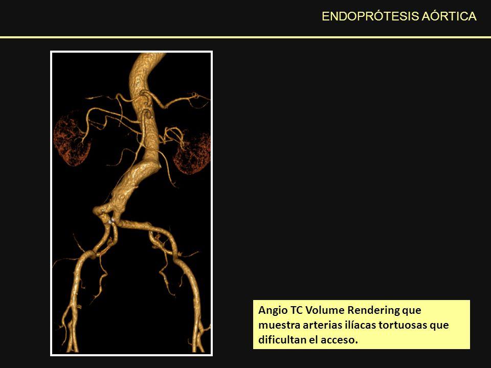 ENDOPRÓTESIS AÓRTICA Angio TC Volume Rendering que muestra arterias ilíacas tortuosas que dificultan el acceso.