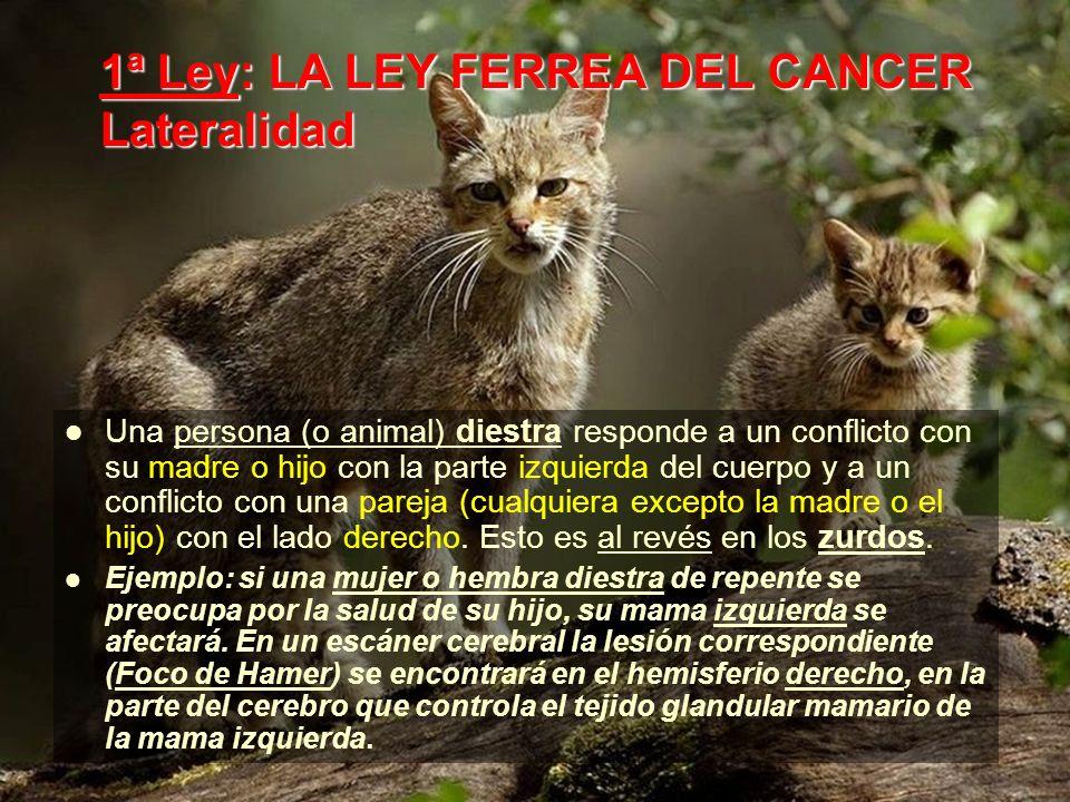 1ª Ley: LA LEY FERREA DEL CANCER Lateralidad