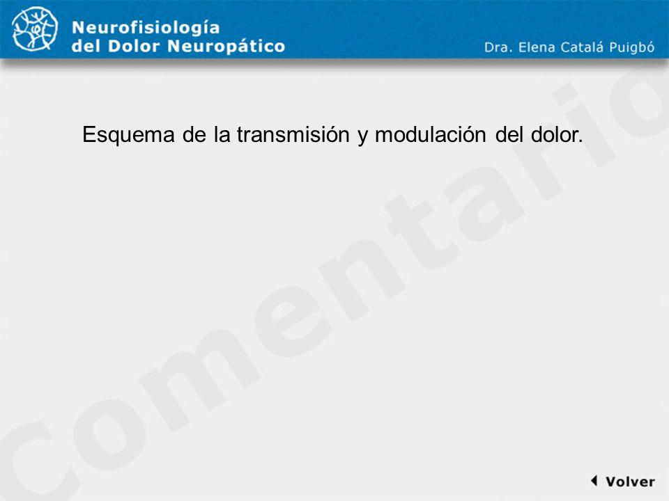 Comentario a diapo11 Esquema de la transmisión y modulación del dolor.