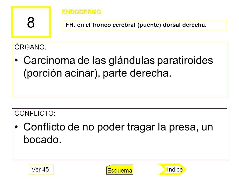 8 ENDODERMO. FH: en el tronco cerebral (puente) dorsal derecha. ÓRGANO: Carcinoma de las glándulas paratiroides (porción acinar), parte derecha.