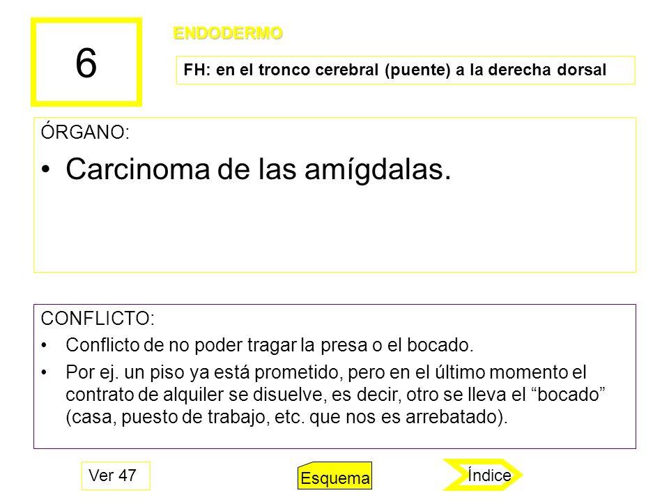 6 Carcinoma de las amígdalas. ÓRGANO: CONFLICTO: