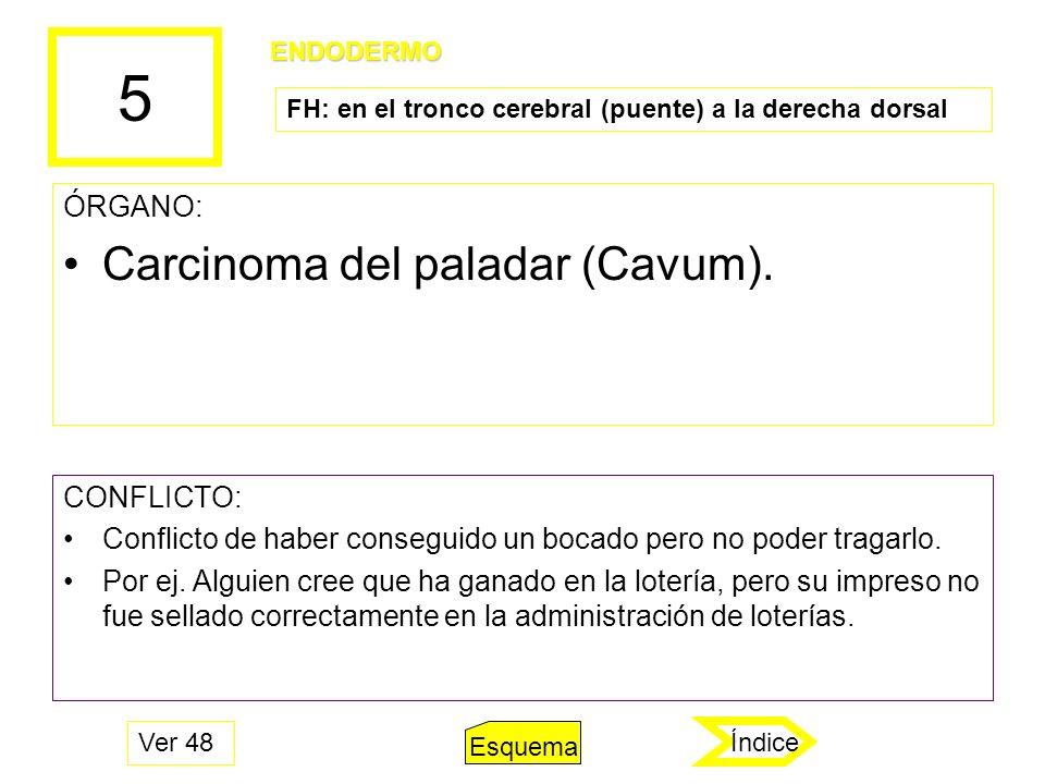 5 Carcinoma del paladar (Cavum). ÓRGANO: CONFLICTO: