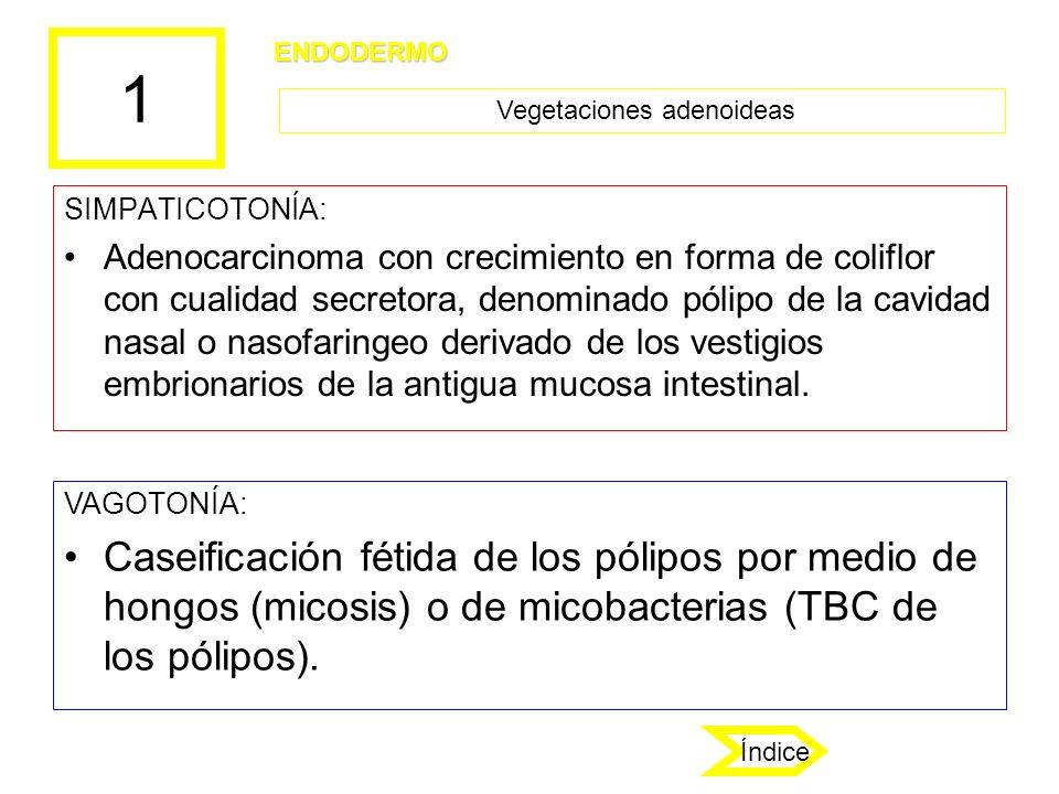 Vegetaciones adenoideas