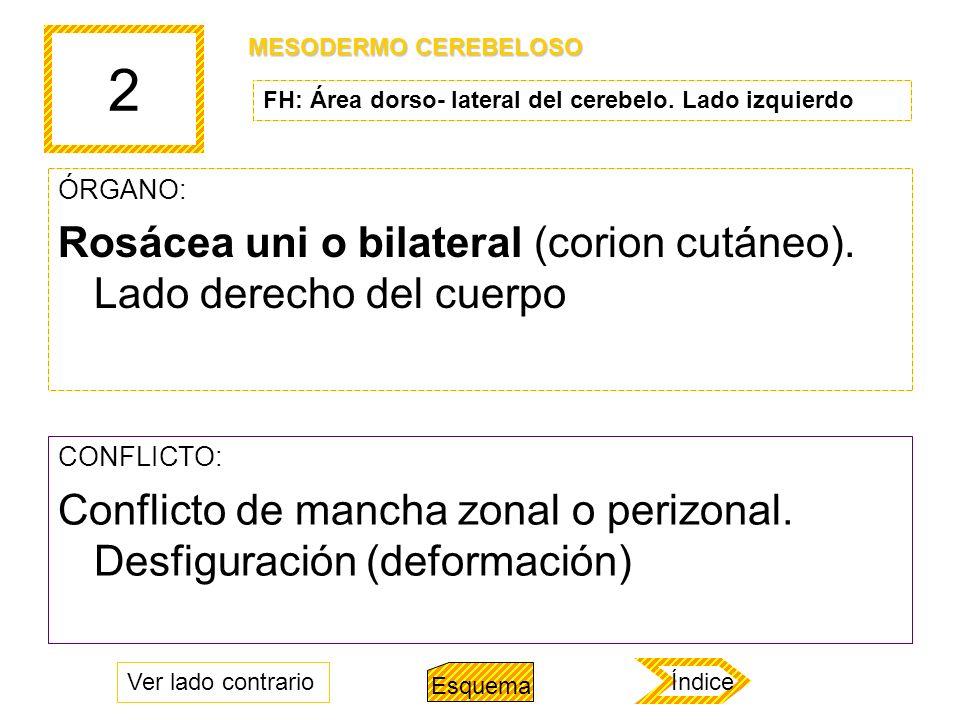 2 Rosácea uni o bilateral (corion cutáneo). Lado derecho del cuerpo