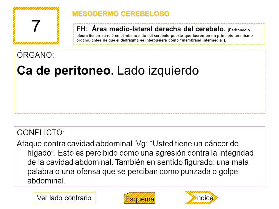 7 Ca de peritoneo. Lado izquierdo ÓRGANO: CONFLICTO: