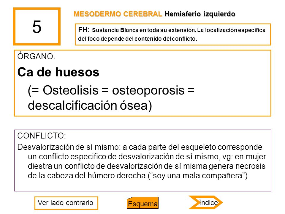 5 Ca de huesos (= Osteolisis = osteoporosis = descalcificación ósea)