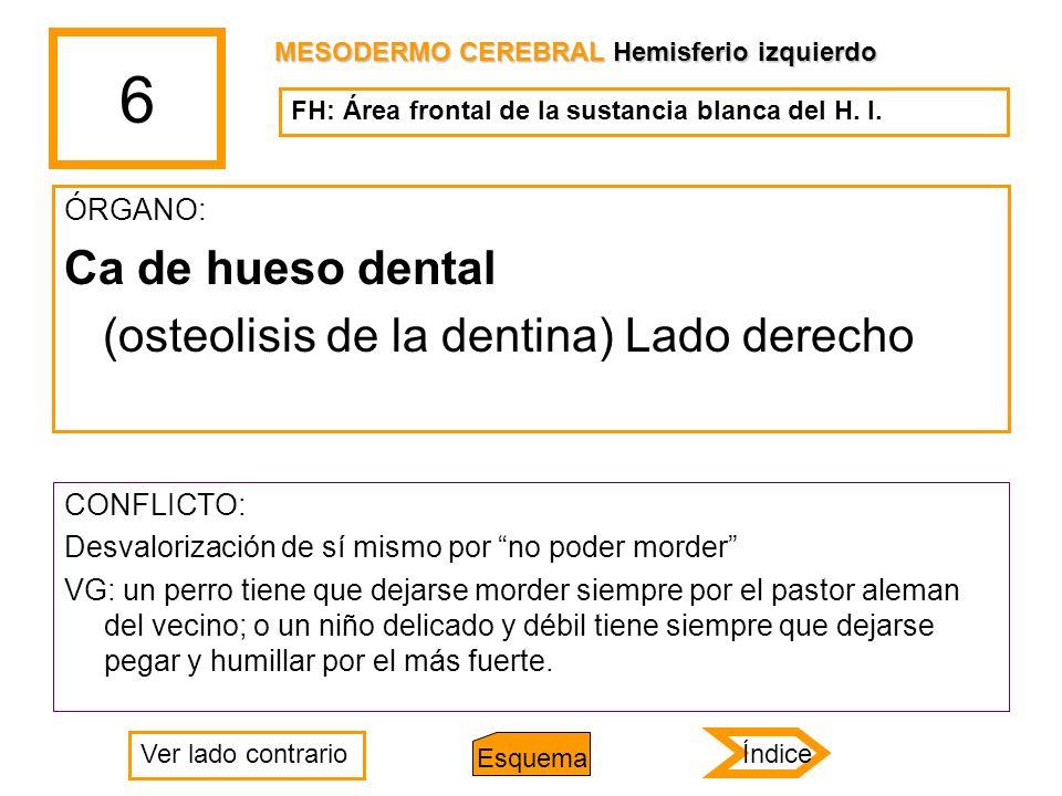6 Ca de hueso dental (osteolisis de la dentina) Lado derecho ÓRGANO: