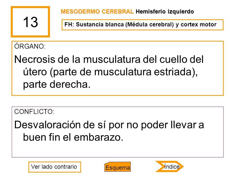13 MESODERMO CEREBRAL Hemisferio izquierdo. FH: Sustancia blanca (Médula cerebral) y cortex motor.