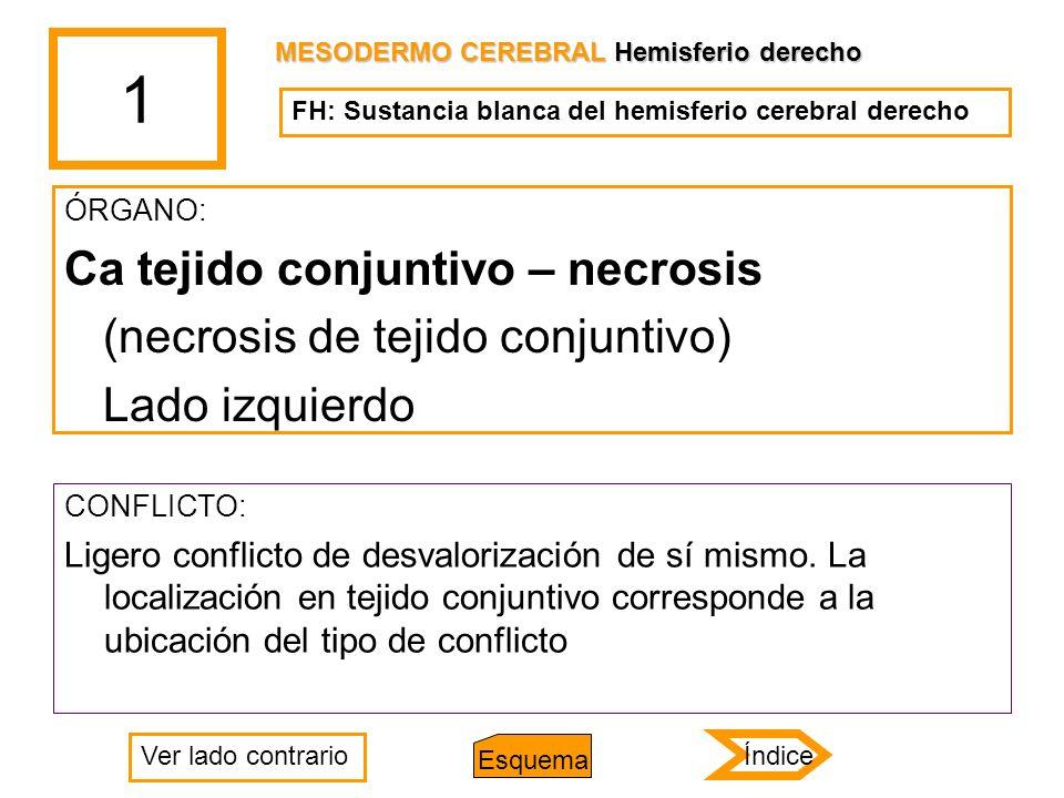 1 Ca tejido conjuntivo – necrosis (necrosis de tejido conjuntivo)