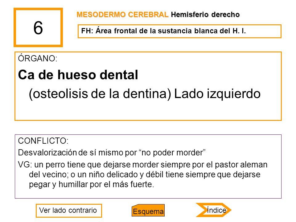6 Ca de hueso dental (osteolisis de la dentina) Lado izquierdo ÓRGANO: