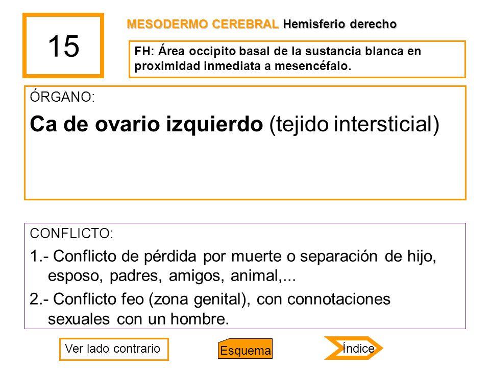 15 Ca de ovario izquierdo (tejido intersticial)