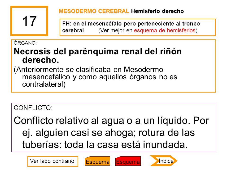 17 MESODERMO CEREBRAL Hemisferio derecho. FH: en el mesencéfalo pero perteneciente al tronco cerebral. (Ver mejor en esquema de hemisferios)