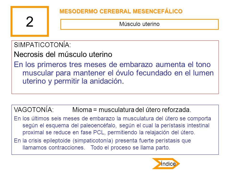 2 Necrosis del músculo uterino