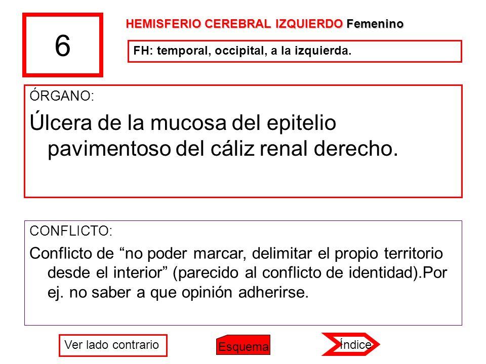 6 HEMISFERIO CEREBRAL IZQUIERDO Femenino. FH: temporal, occipital, a la izquierda. ÓRGANO: