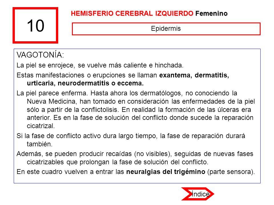 10 VAGOTONÍA: HEMISFERIO CEREBRAL IZQUIERDO Femenino Epidermis