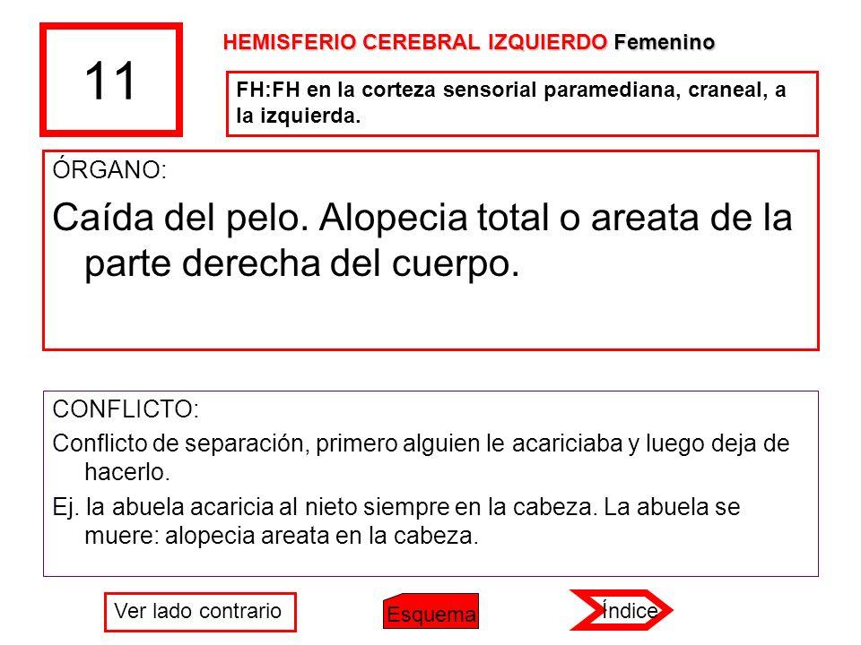 11 HEMISFERIO CEREBRAL IZQUIERDO Femenino. FH:FH en la corteza sensorial paramediana, craneal, a la izquierda.