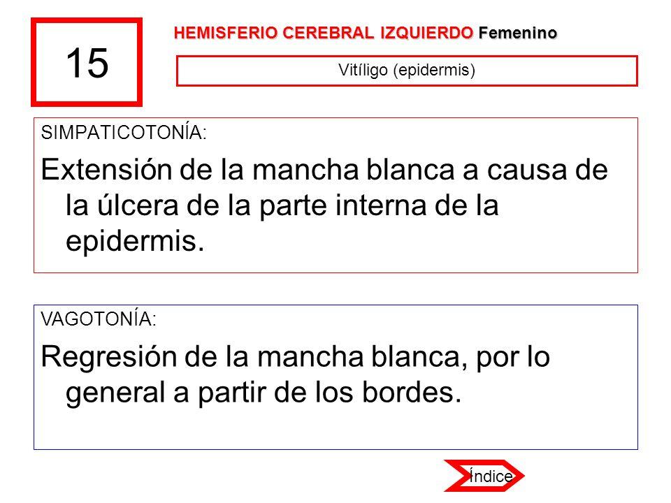 15 HEMISFERIO CEREBRAL IZQUIERDO Femenino. Vitíligo (epidermis) SIMPATICOTONÍA:
