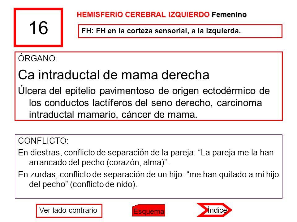 16 Ca intraductal de mama derecha