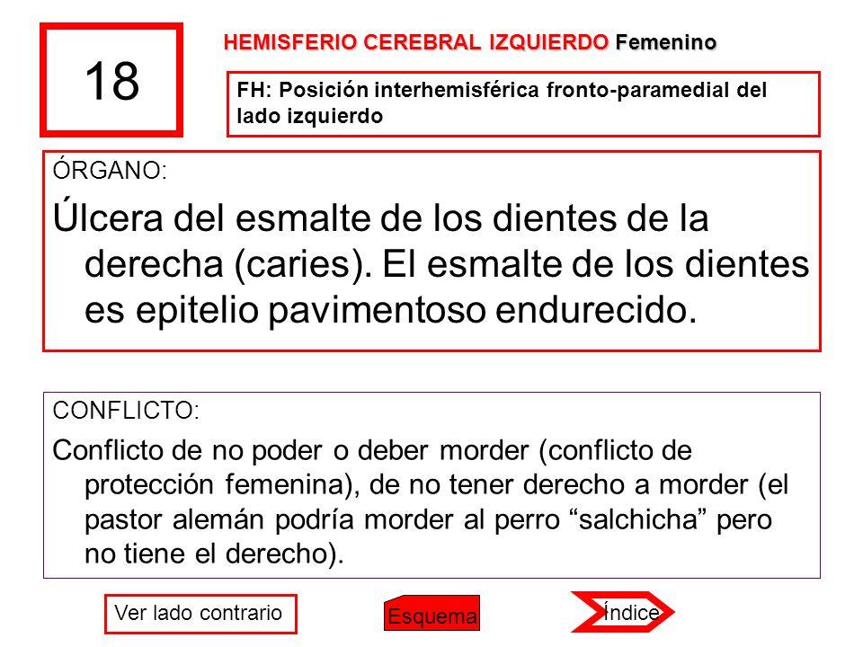 18 HEMISFERIO CEREBRAL IZQUIERDO Femenino. FH: Posición interhemisférica fronto-paramedial del lado izquierdo.