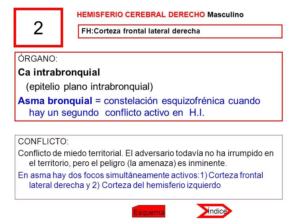 2 Ca intrabronquial (epitelio plano intrabronquial)