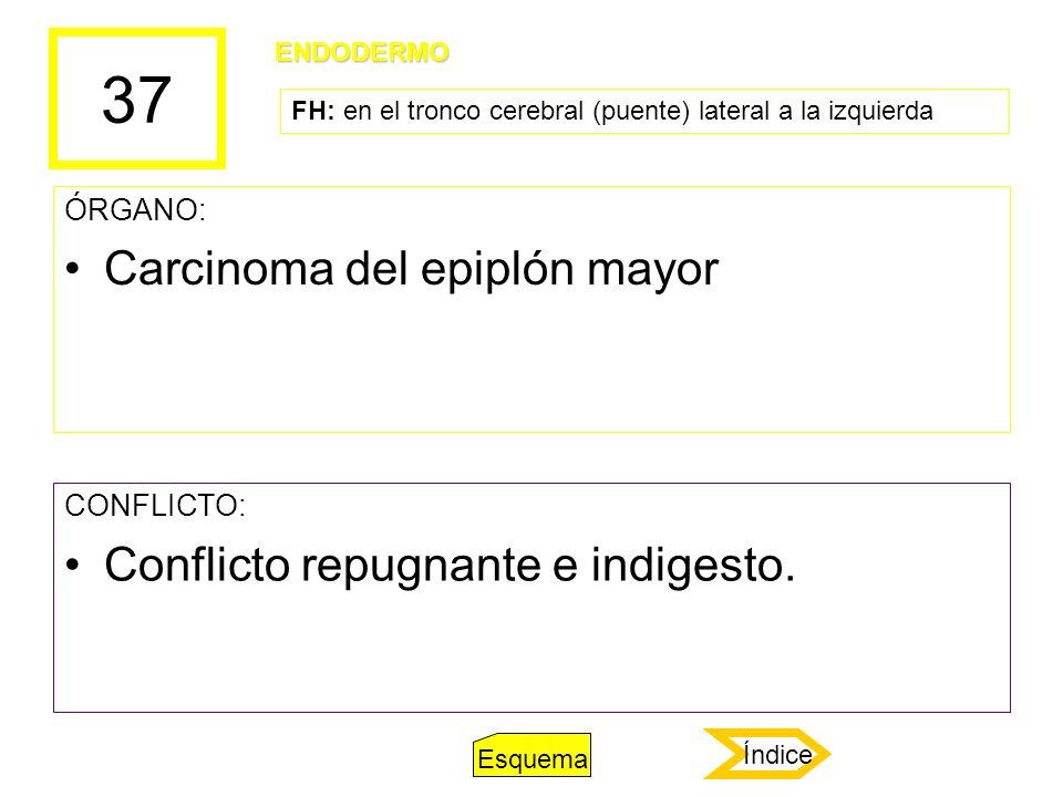 37 Carcinoma del epiplón mayor Conflicto repugnante e indigesto.