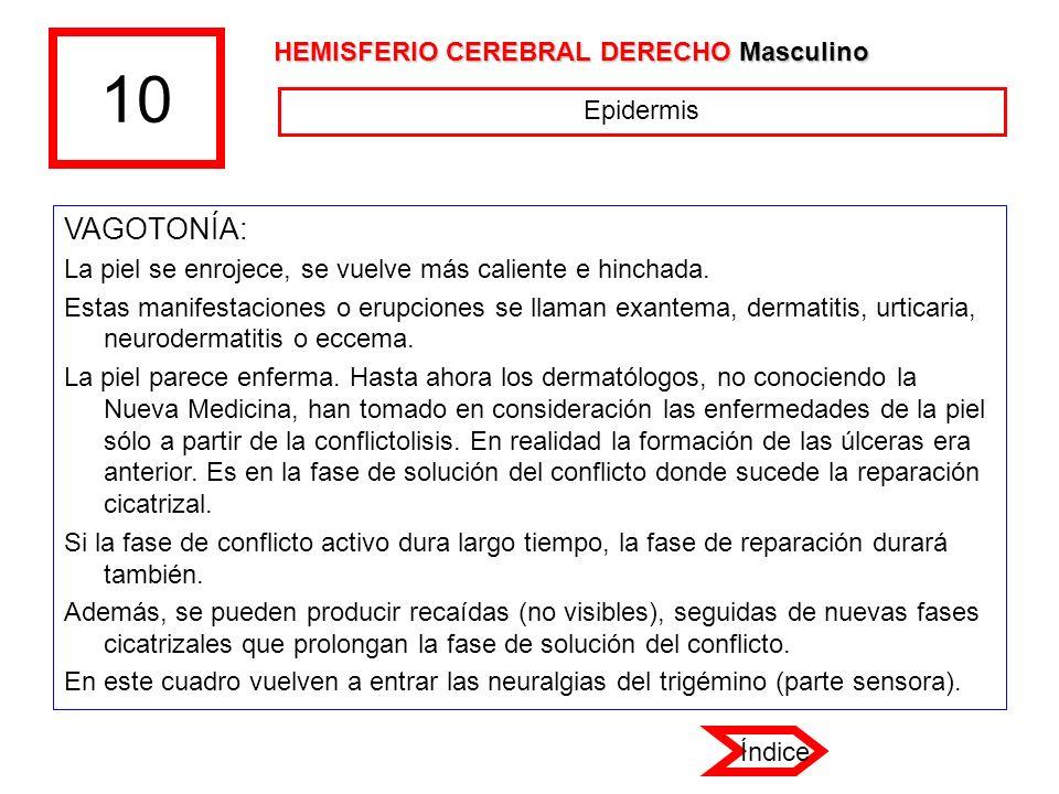 10 VAGOTONÍA: HEMISFERIO CEREBRAL DERECHO Masculino Epidermis