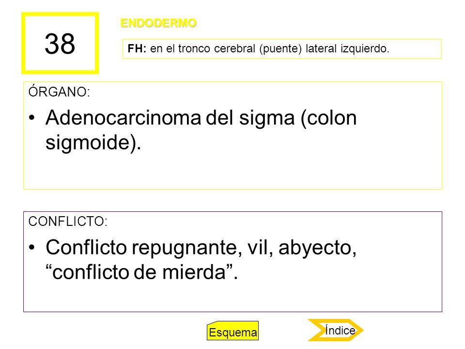 38 Adenocarcinoma del sigma (colon sigmoide).
