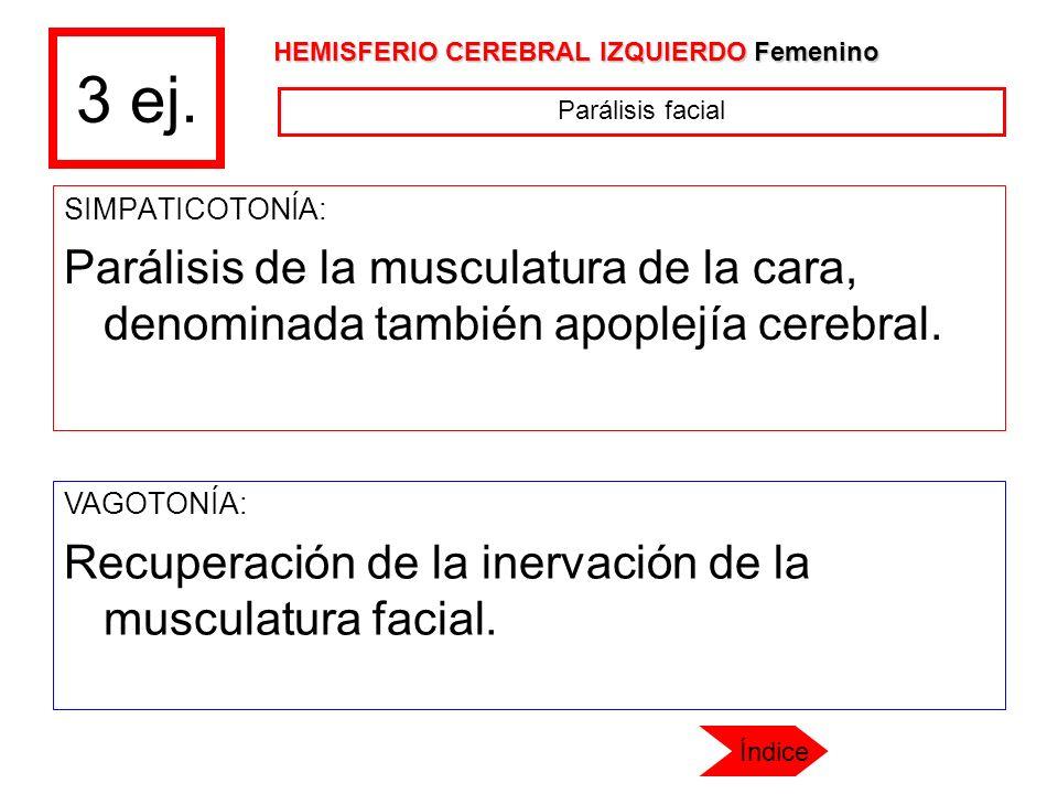 3 ej. HEMISFERIO CEREBRAL IZQUIERDO Femenino. Parálisis facial. SIMPATICOTONÍA: