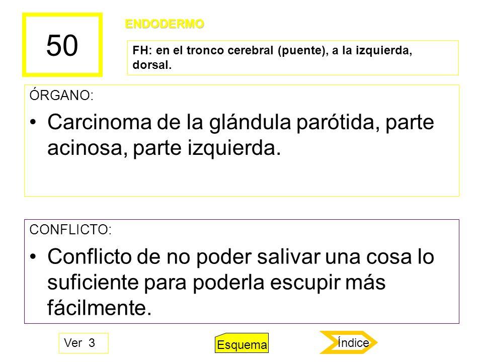 50 Carcinoma de la glándula parótida, parte acinosa, parte izquierda.