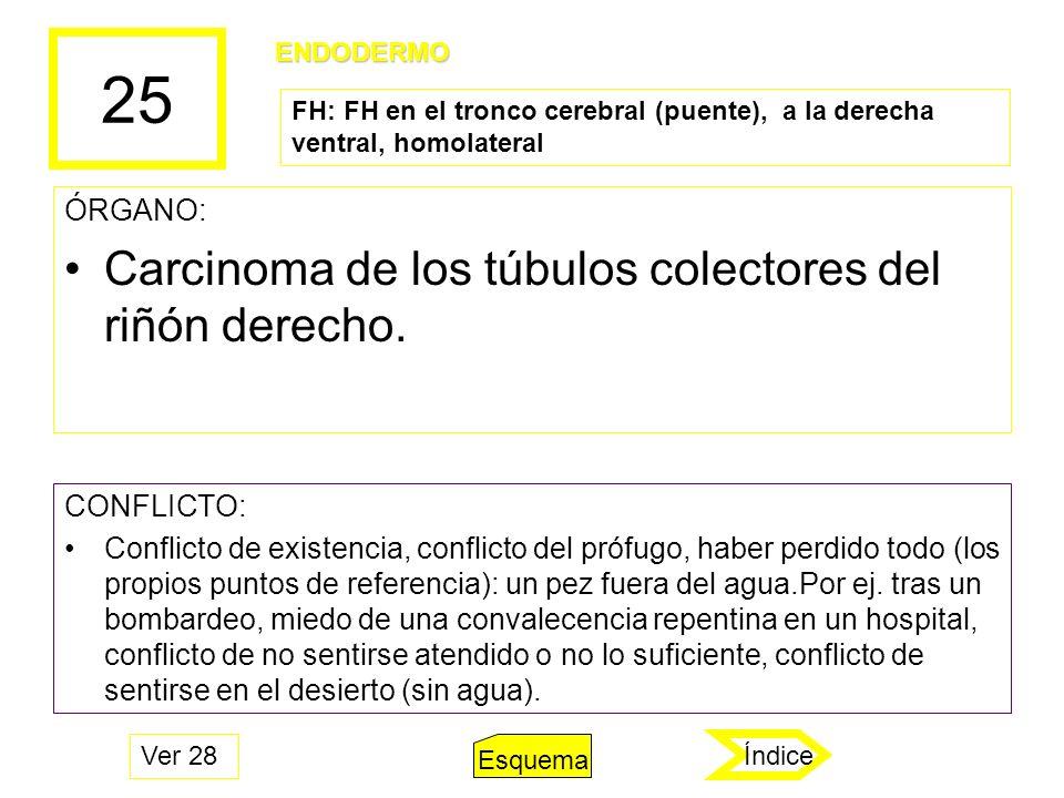 25 Carcinoma de los túbulos colectores del riñón derecho. ÓRGANO: