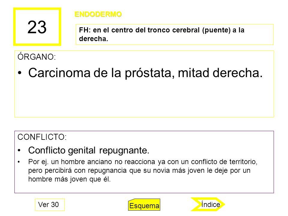 23 Carcinoma de la próstata, mitad derecha.