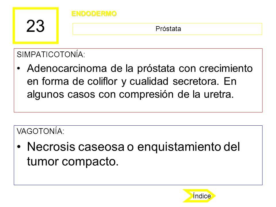 23 Necrosis caseosa o enquistamiento del tumor compacto.