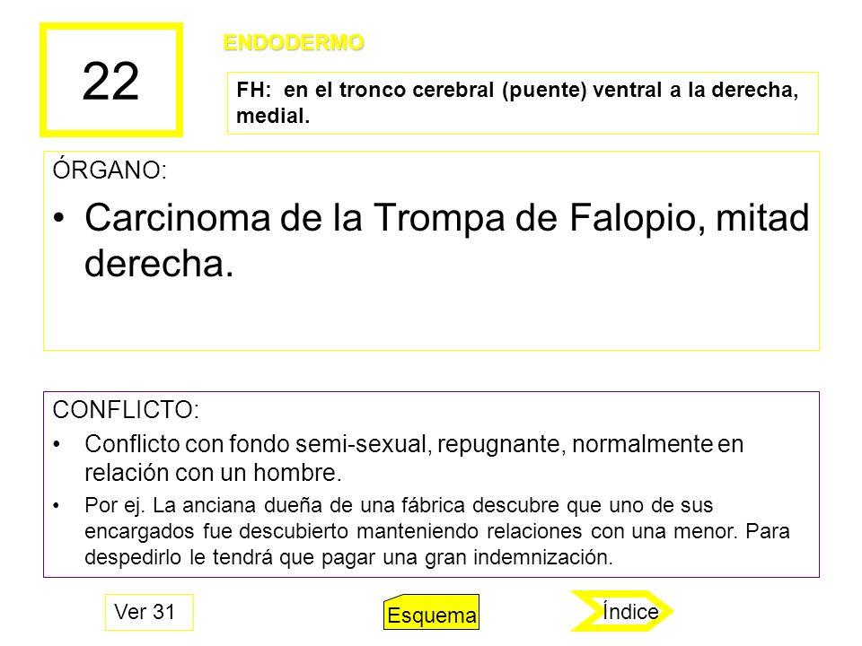 22 Carcinoma de la Trompa de Falopio, mitad derecha. ÓRGANO: