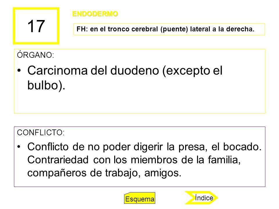 17 Carcinoma del duodeno (excepto el bulbo).