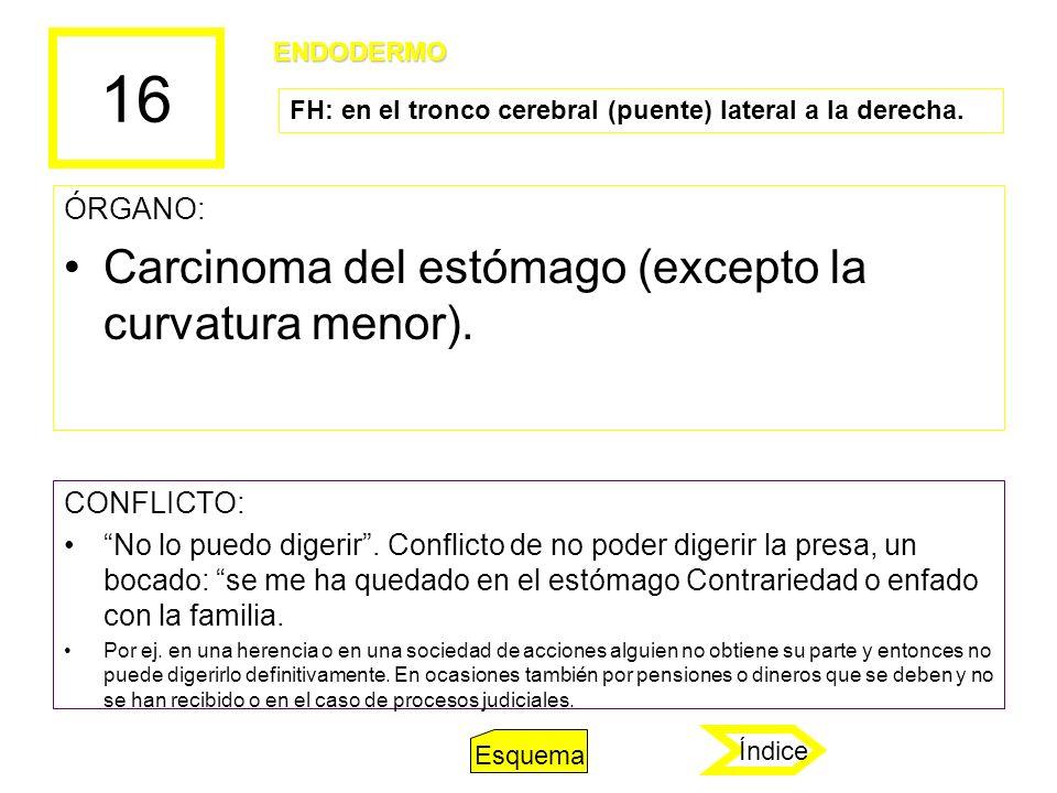 16 Carcinoma del estómago (excepto la curvatura menor). ÓRGANO: