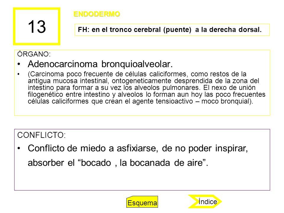 13 Adenocarcinoma bronquioalveolar.