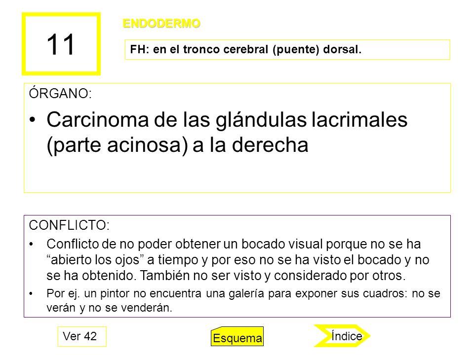 11 Carcinoma de las glándulas lacrimales (parte acinosa) a la derecha