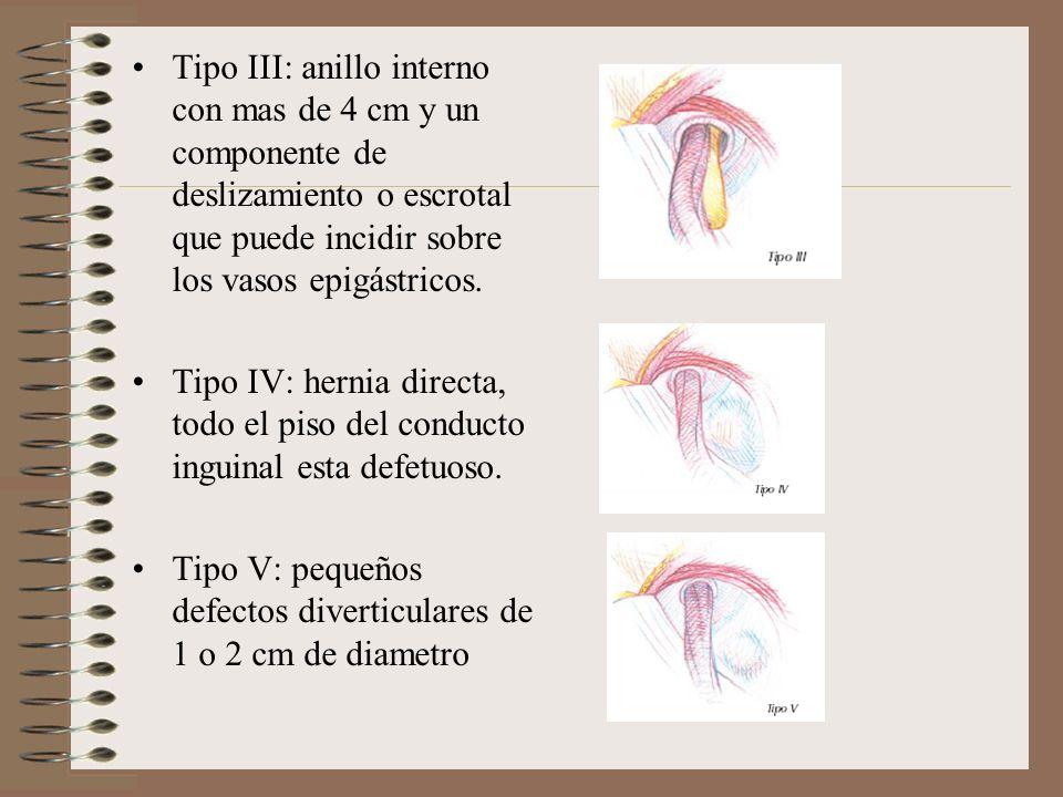 Tipo III: anillo interno con mas de 4 cm y un componente de deslizamiento o escrotal que puede incidir sobre los vasos epigástricos.
