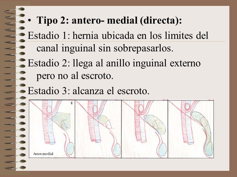 Tipo 2: antero- medial (directa):